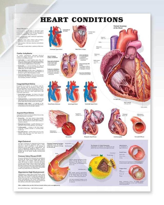 Heart Conditions damaged poster