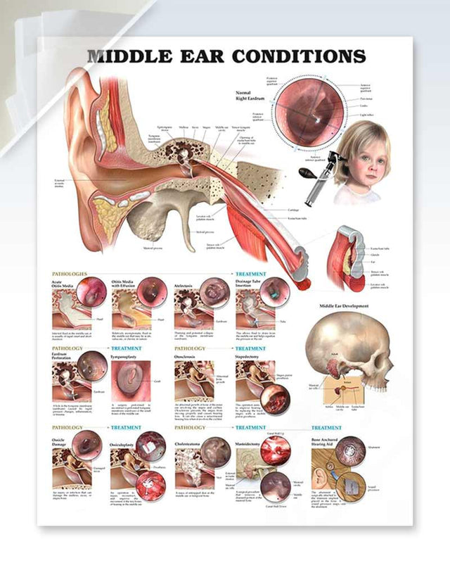 Middle Ear Conditions damaged poster