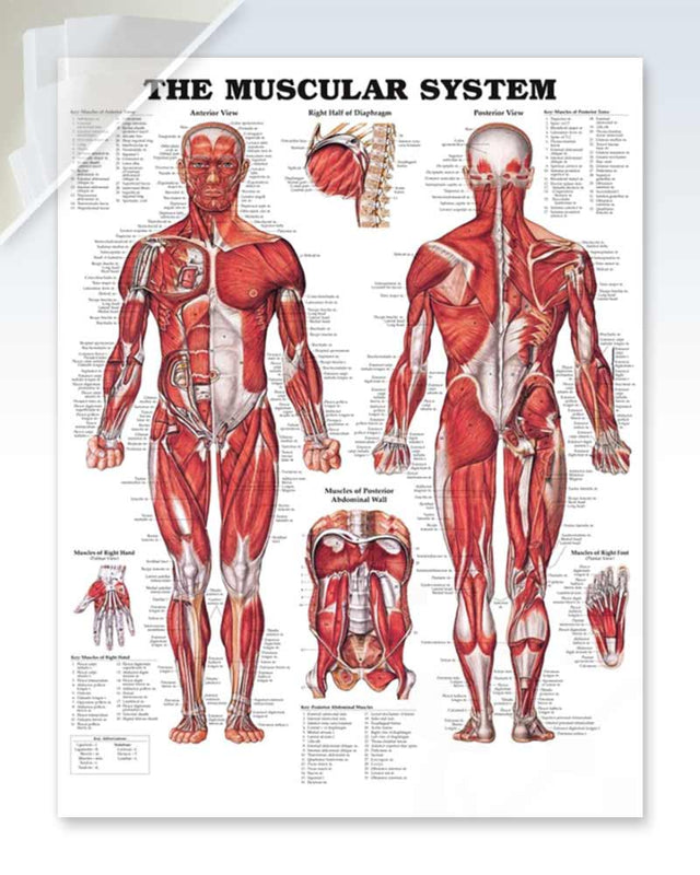 Muscular System damaged anatomy poster