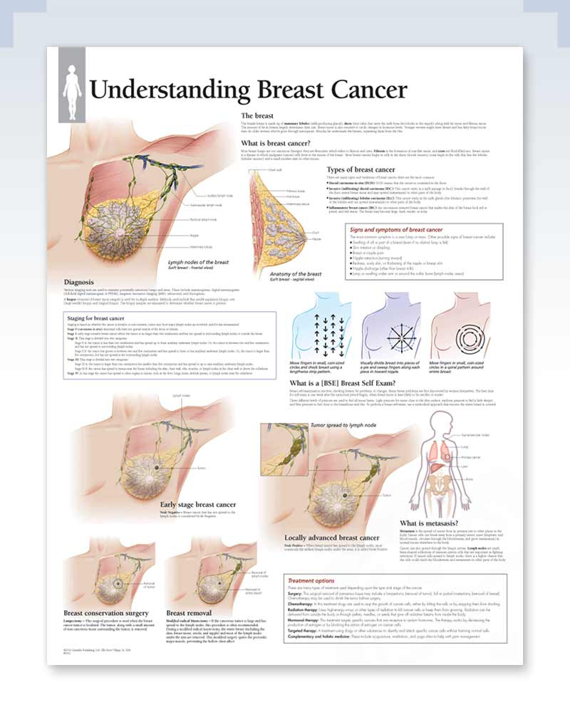 Understanding Breast Cancer Anatomy Poster