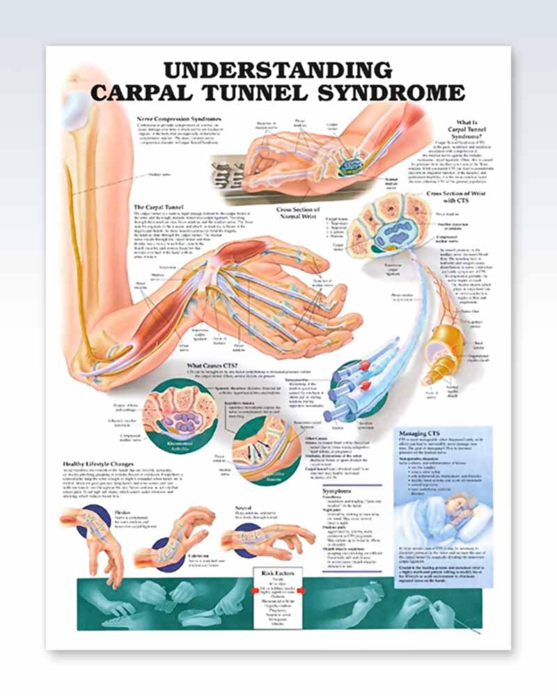 Carpal Tunnel Syndrome Exam-Room Anatomy Poster – ClinicalPosters