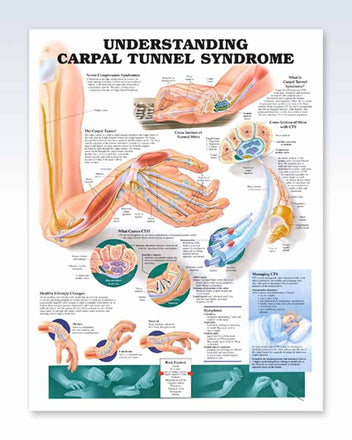 Carpal Tunnel Syndrome anatomy poster