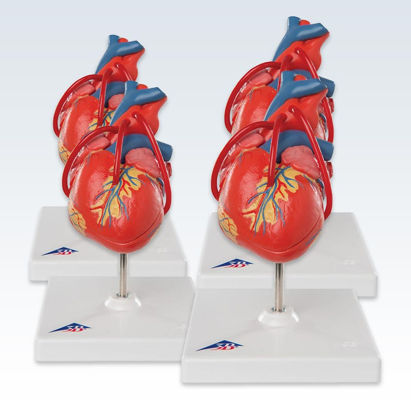 Set of 4 Heart Models With Bypass
