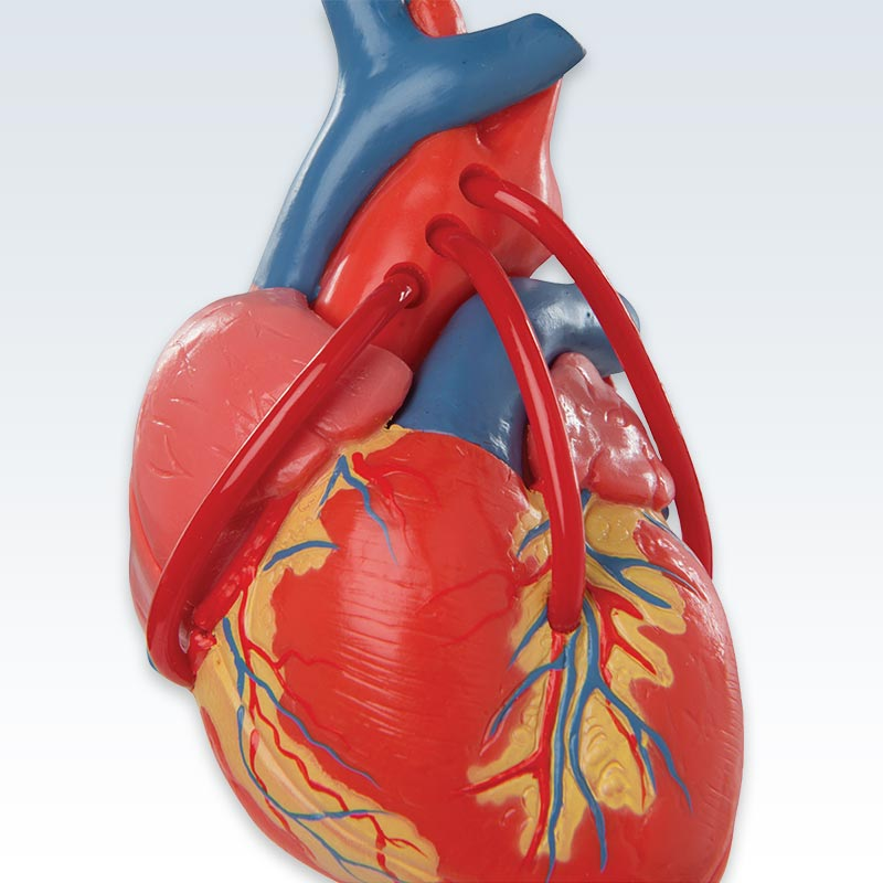 3B Classic 2-Part Heart Anatomical Model With Bypass – ClinicalPosters