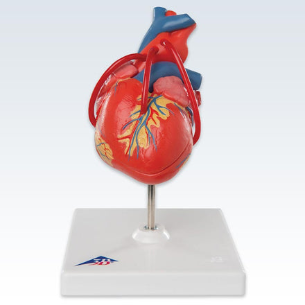 Classic 2-Part Heart Model With Bypass