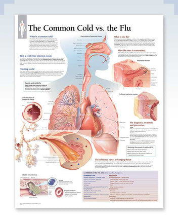 Common Cold vs Flu anatomy poster