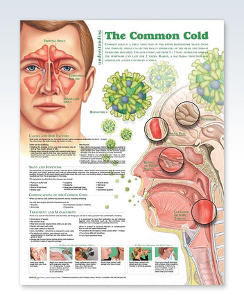 Common Cold anatomy poster