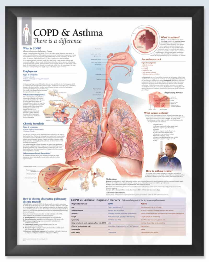 COPD & Asthma Chart 22x28