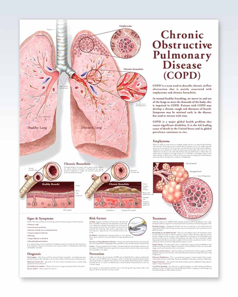 COPD anatomy poster