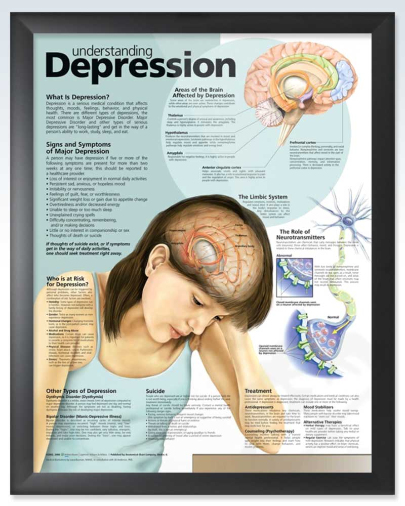 Depression Exam Room Anatomy Poster Clinicalposters