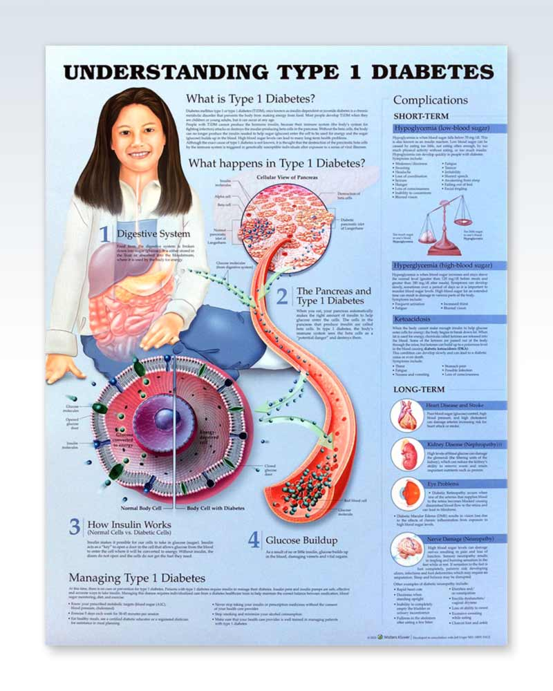 Understanding Type 1 Diabetes anatomy poster