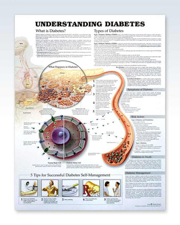 Understanding Diabetes anatomy poster
