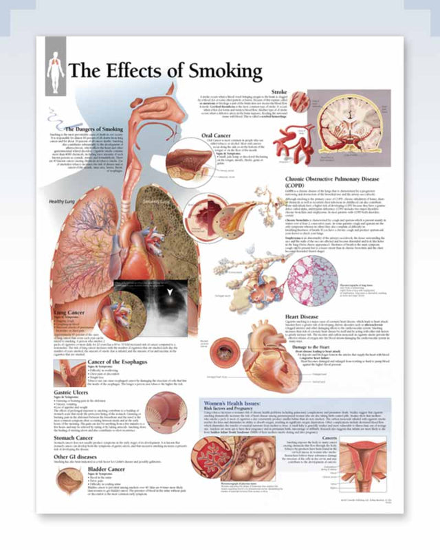 Effects of Smoking anatomy poster