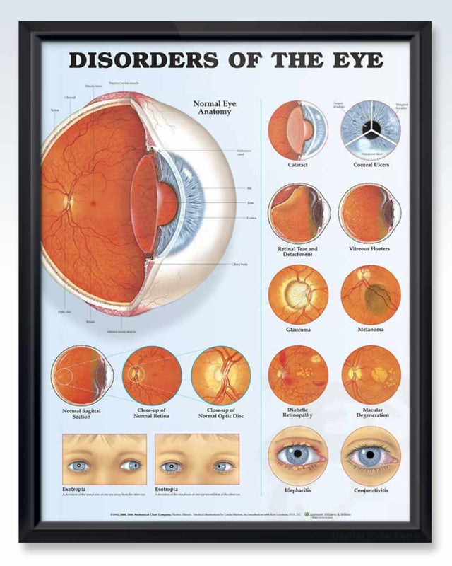 Disorders of the Eye Exam Room Anatomy Poster – ClinicalPosters