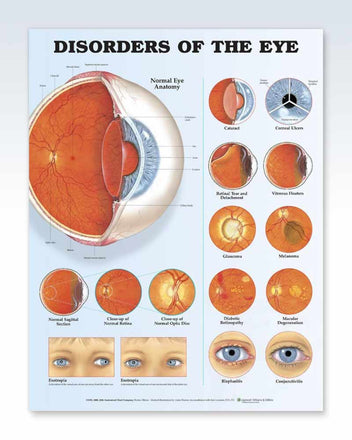 Disorders of the Eye anatomy poster