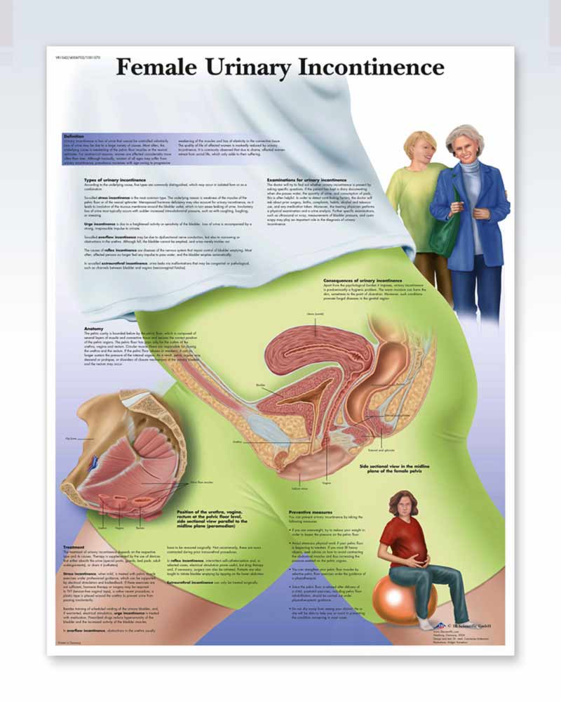 Female Urinary Incontinence anatomy poster