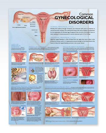 Gynecological Disorders anatomy poster