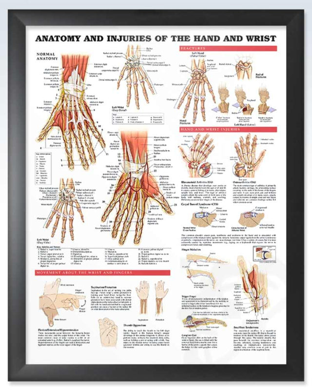 Injuries of the Hand and Wrist Exam Room Anatomy Poster ...