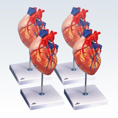 Set of 4 Heart Bypass  Models