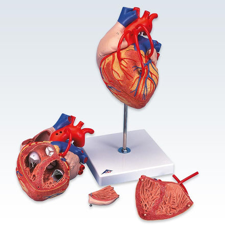Heart Bypass 2x Size 4-Part Model