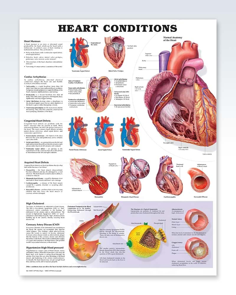 Heart Conditions Exam Room Anatomy Poster Clinicalposters