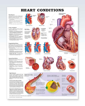 Heart Conditions anatomy poster
