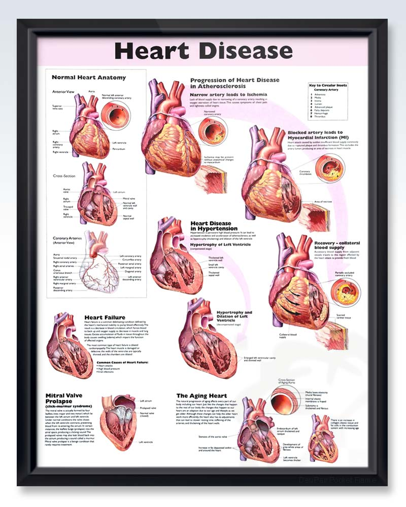 Cardiology Human Anatomy Posters Clinicalposters