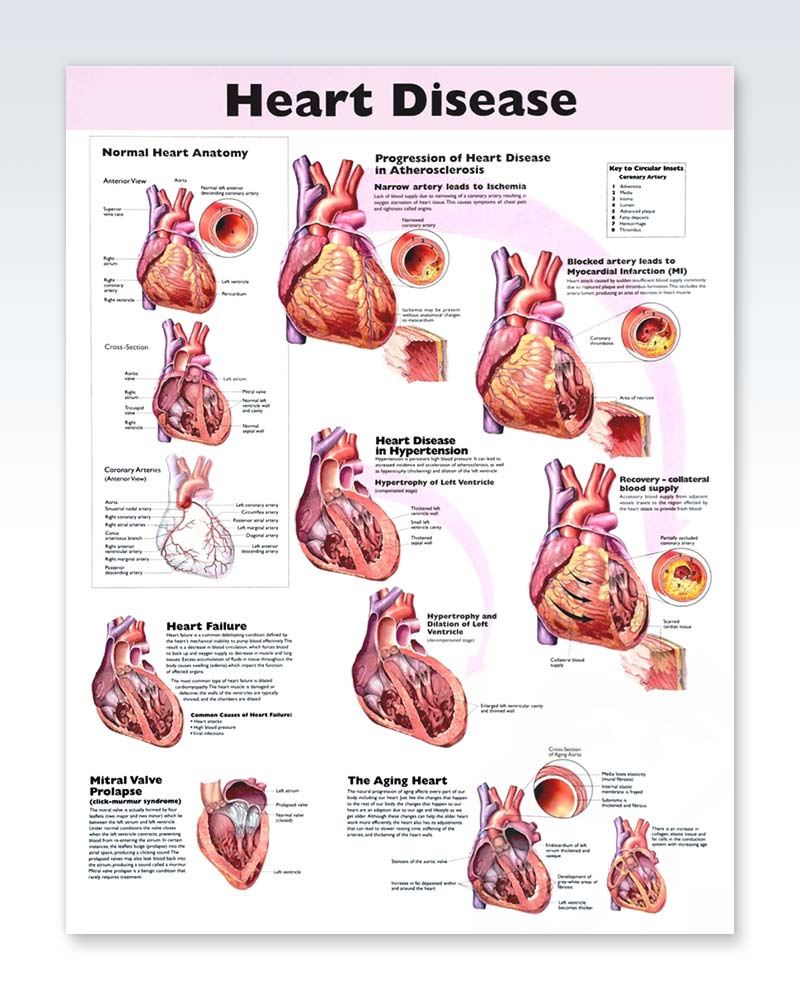 Heart Disease Exam Room Anatomy Poster Clinicalposters