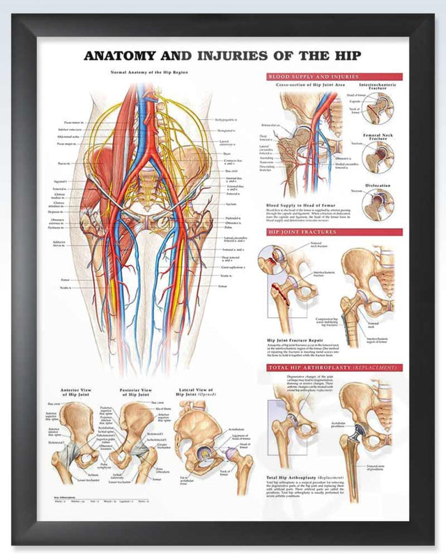Injuries of the Hip Exam Room Anatomy Poster – ClinicalPosters