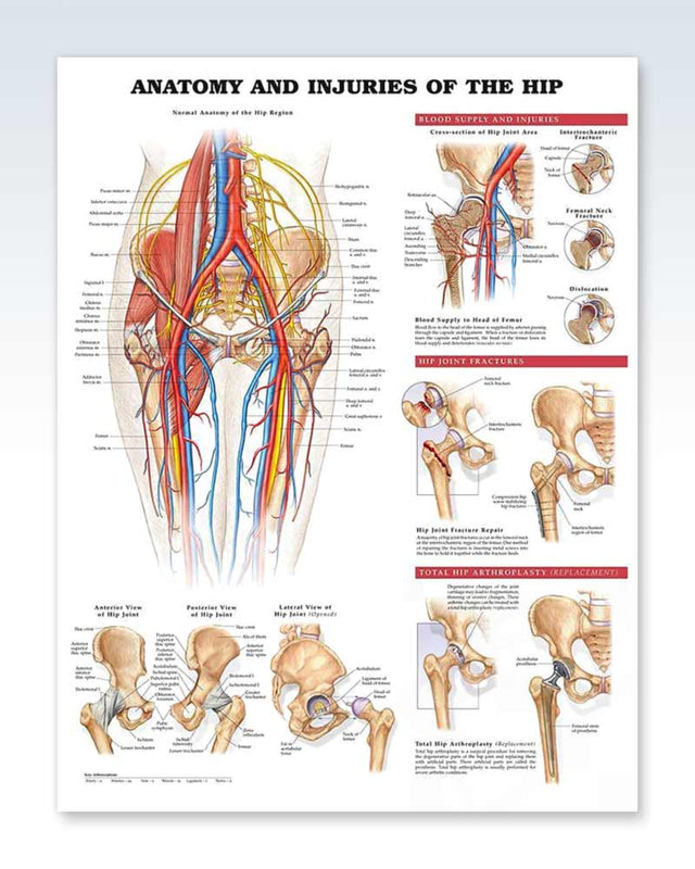 Injuries of the Hip anatomy poster