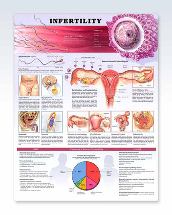 Infertility anatomy poster