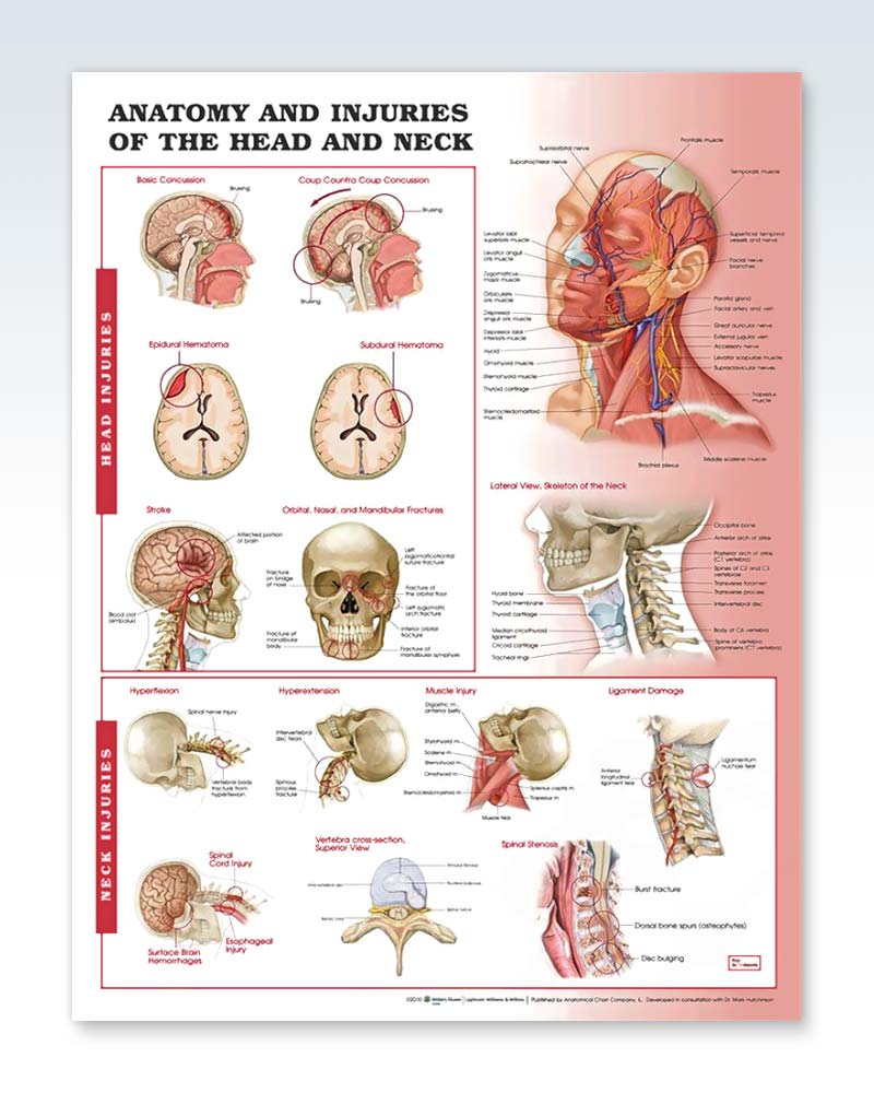 Injuries of the Head and Neck Exam Room Anatomy Poster – ClinicalPosters