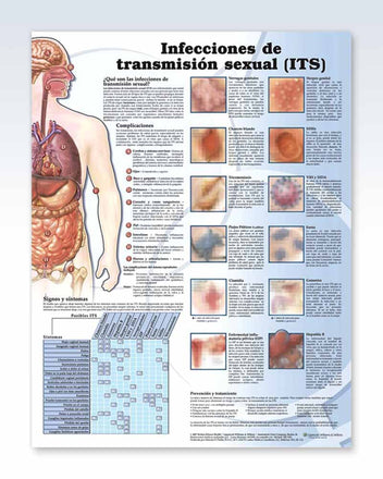 Infecciones de Transmision Sexual anatomy poster