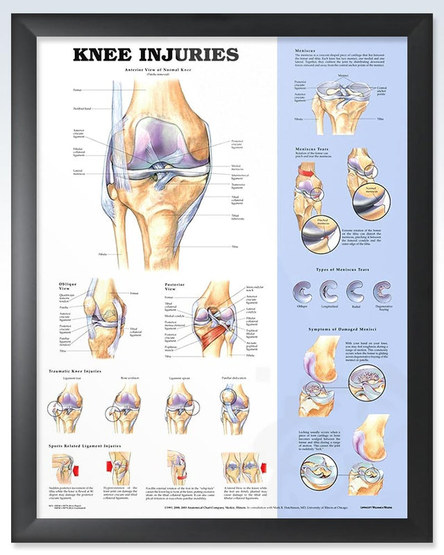 Knee Injuries Exam Room Anatomy Poster – ClinicalPosters