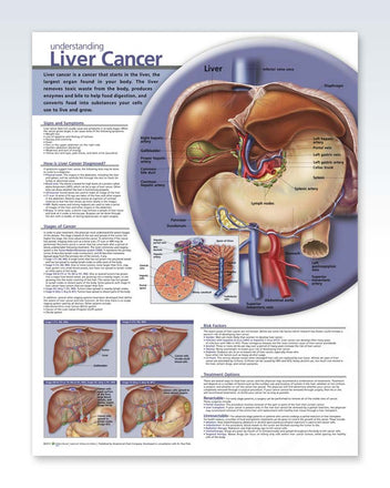 Liver Cancer anatomy poster