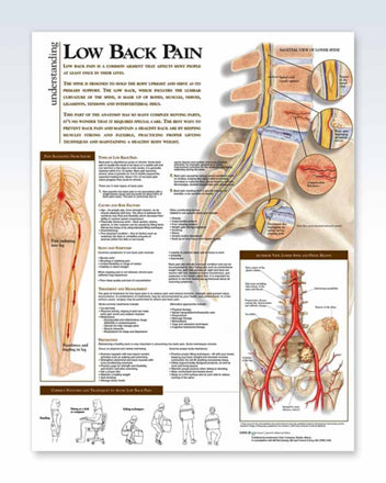 Low Back Pain anatomy poster