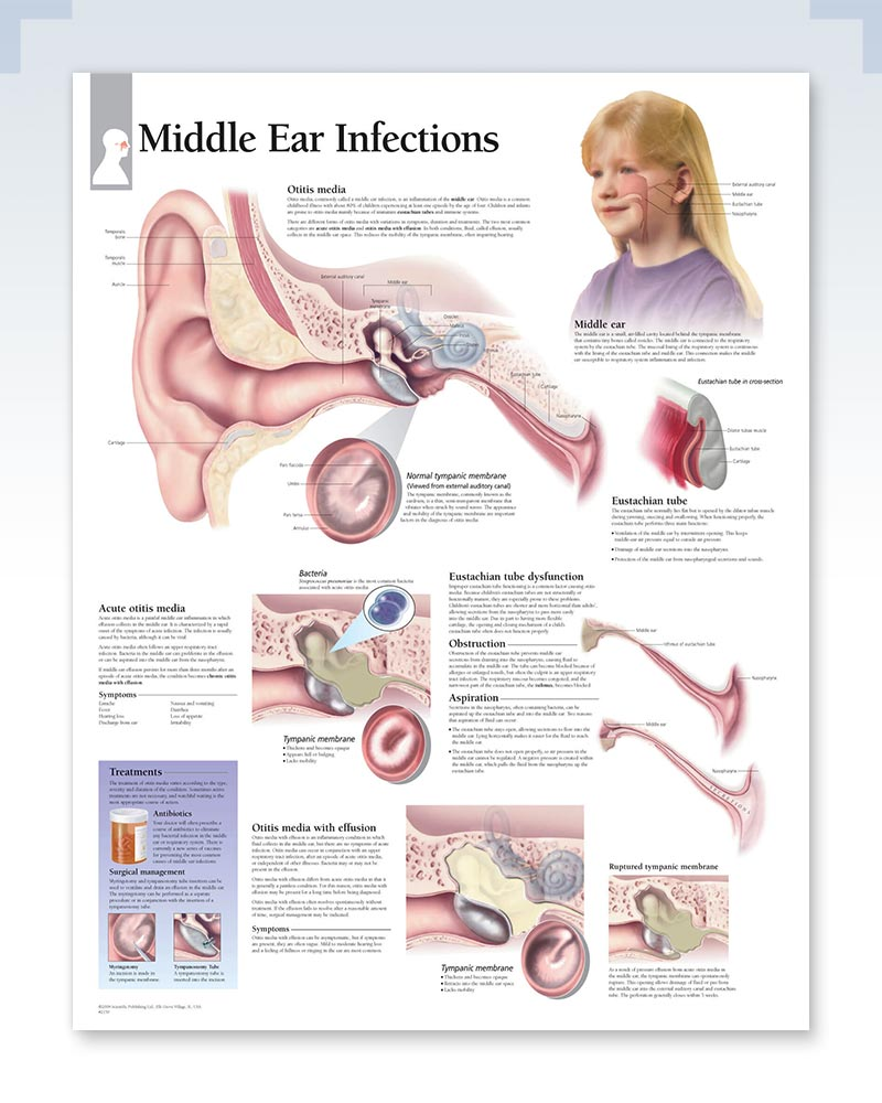 Middle Ear Infections poster