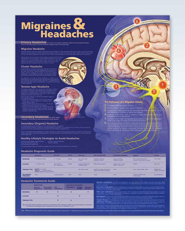 Migraines & Headaches anatomy poster