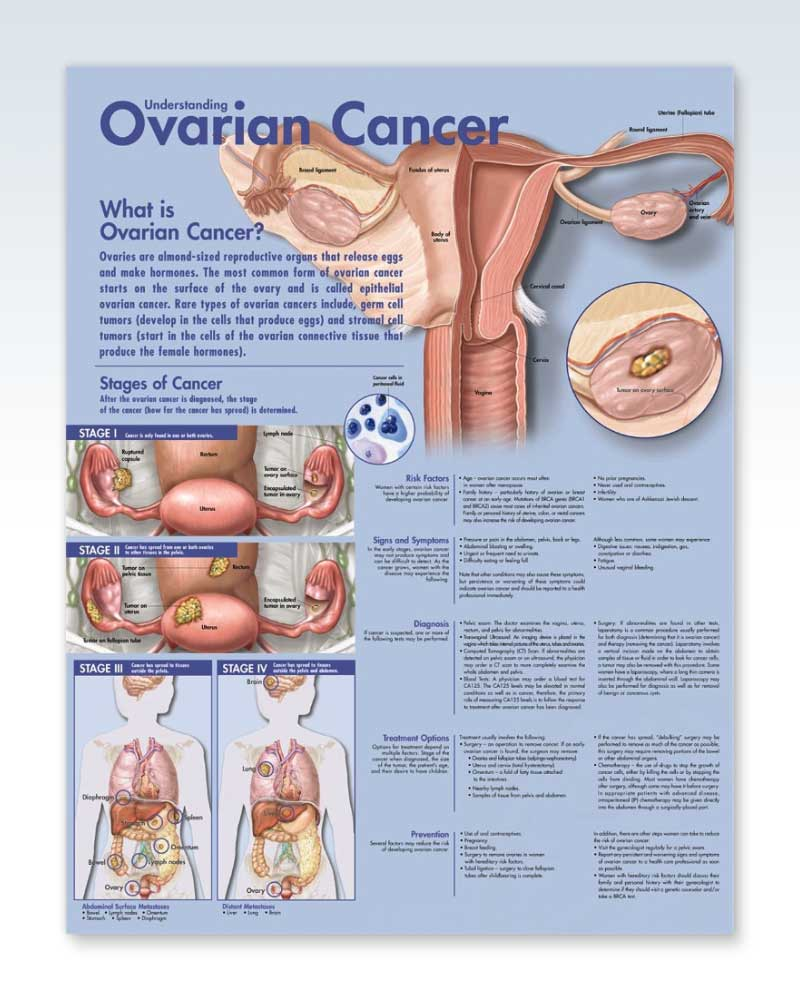 Ovarian Cancer anatomy poster