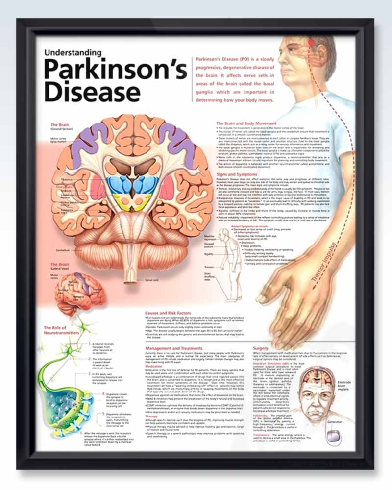 Parkinsons Disease Exam Room Anatomy Poster Clinicalposters