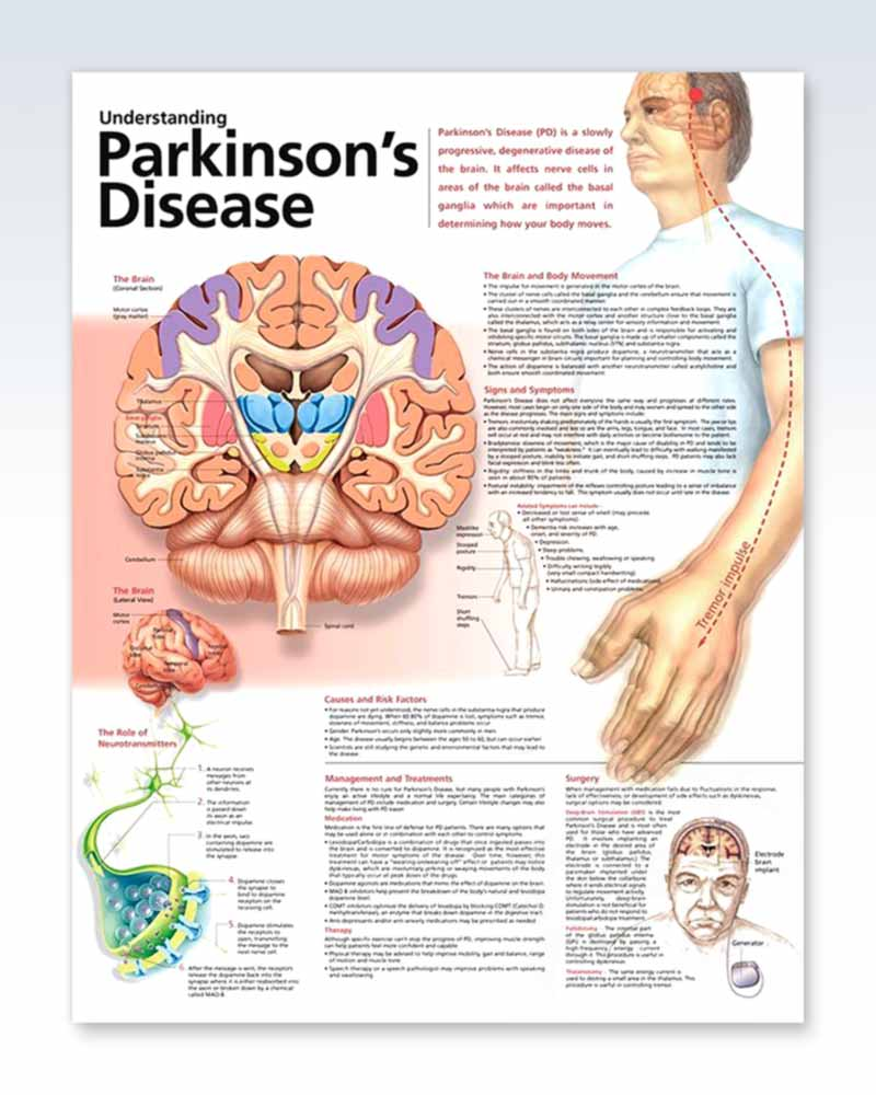 an examination of parkinsons disease and The first step in diagnosing pd and its related disorders is a full neurological  examination with a focus on the patient's movement, balance and coordination.