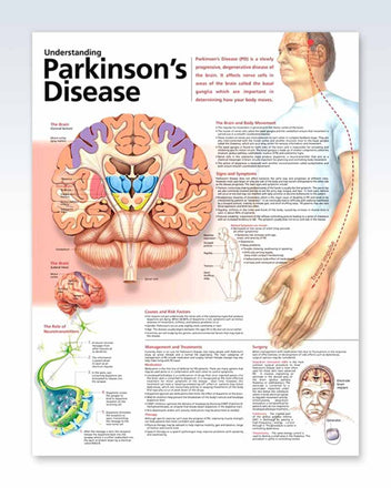 Parkinson's Disease anatomy poster