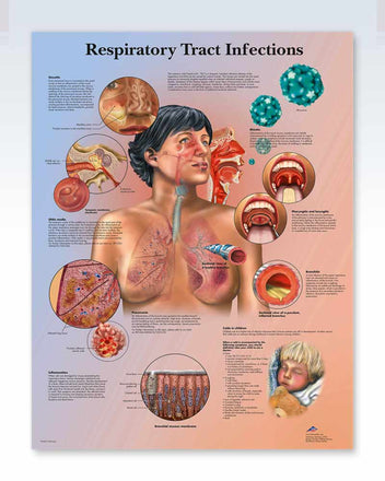 Respiratory Tract Infections Anatomy Poster