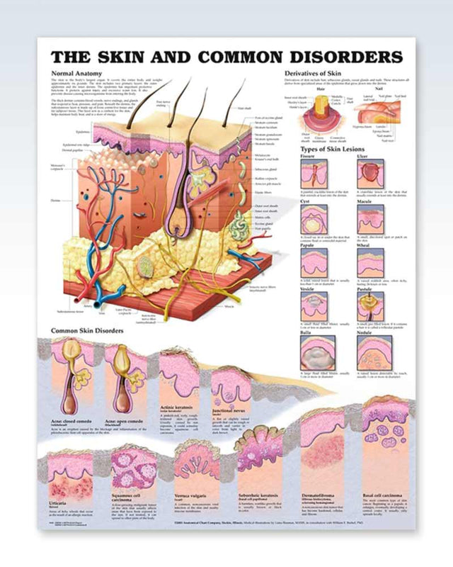 Skin and Common Disorders anatomy poster
