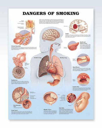 Dangers of Smoking anatomy poster