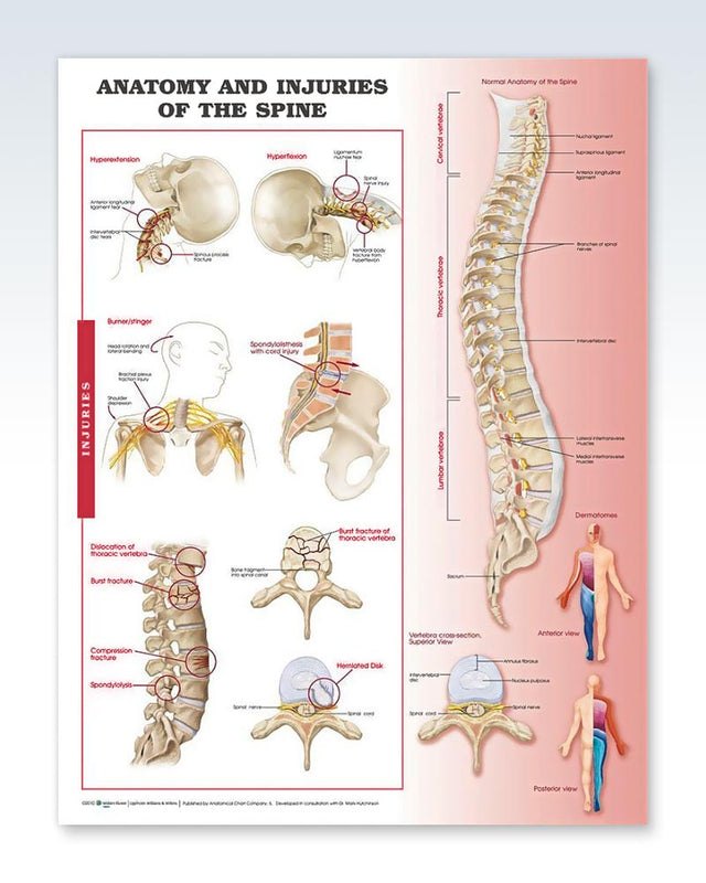 Injuries of the Spine Anatomy Poster