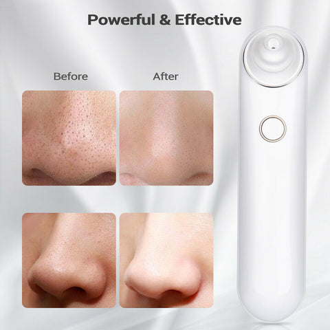 Electric Facial Skin Cleanser Care Blackhead Vacuum Acne Cleaner - Rewardeals