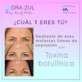BOTOX ANTIFAZ