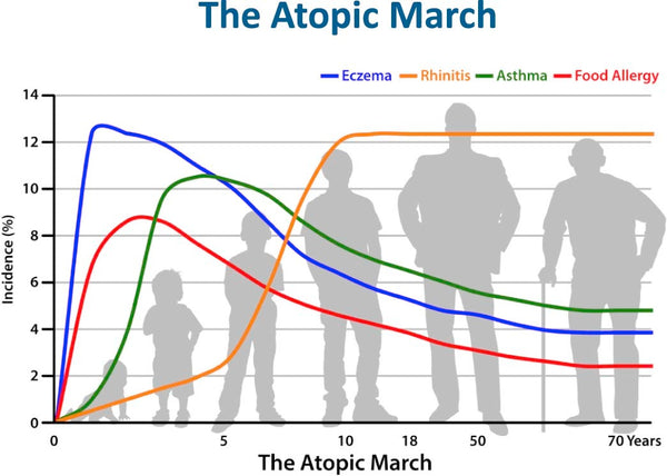Early Signs of Food Allergies: The Atopic March