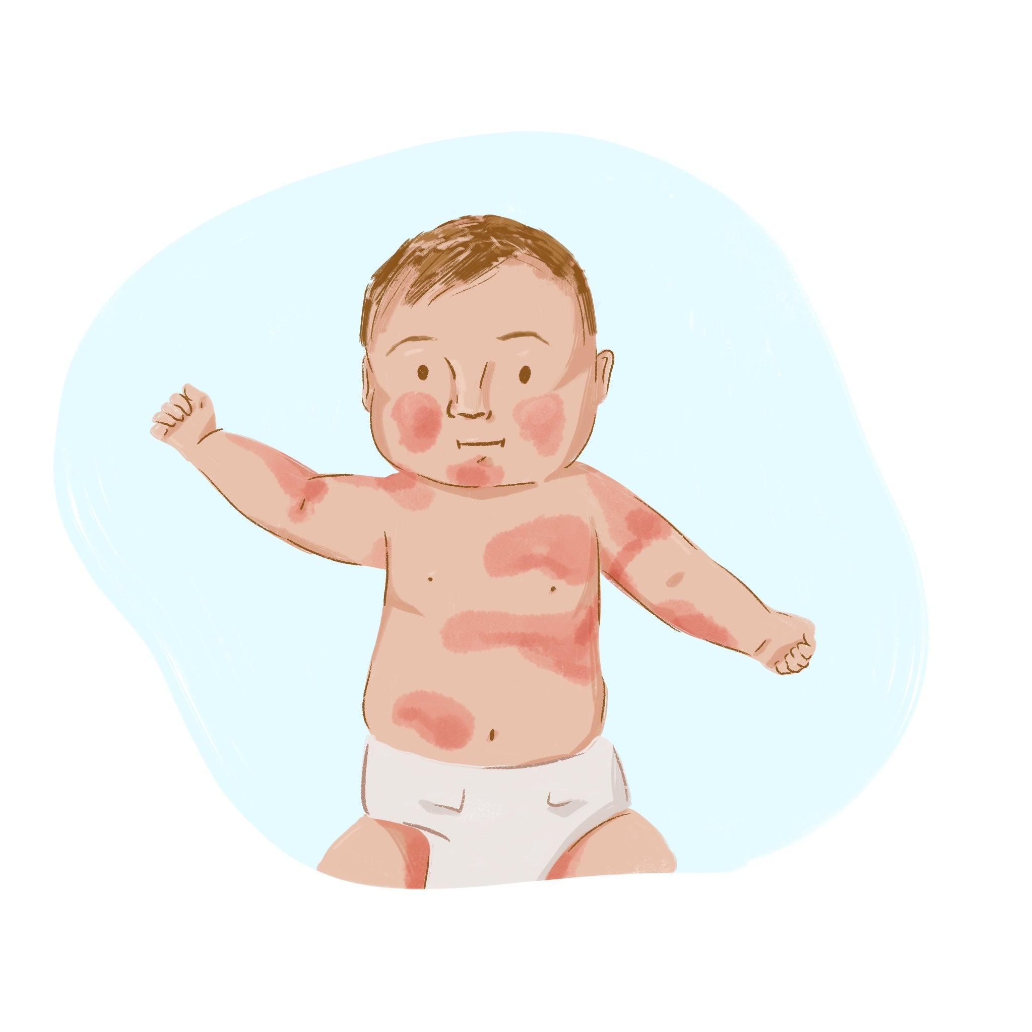 baby with eczema on face and in elbows